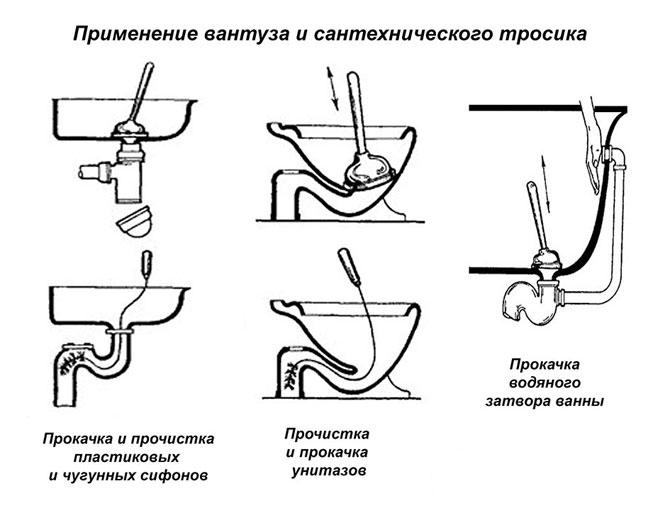 действие вантуза и тросика